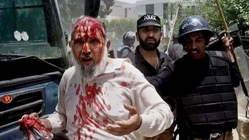 سانحہ ماڈل ٹاون کے زخمی اور اسیر صوفی محمد طفیل ڈار انتقال کر گئے، شیخ الاسلام ڈاکٹر محمد طاہرالقادری کا اظہار تعزیت